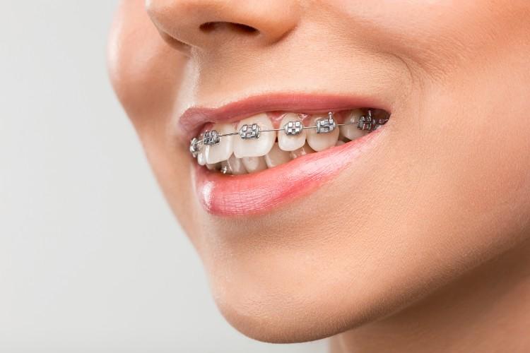 Presentación de trabajos finales: Especialización en Ortodoncia y Ortopedia Dentofacial