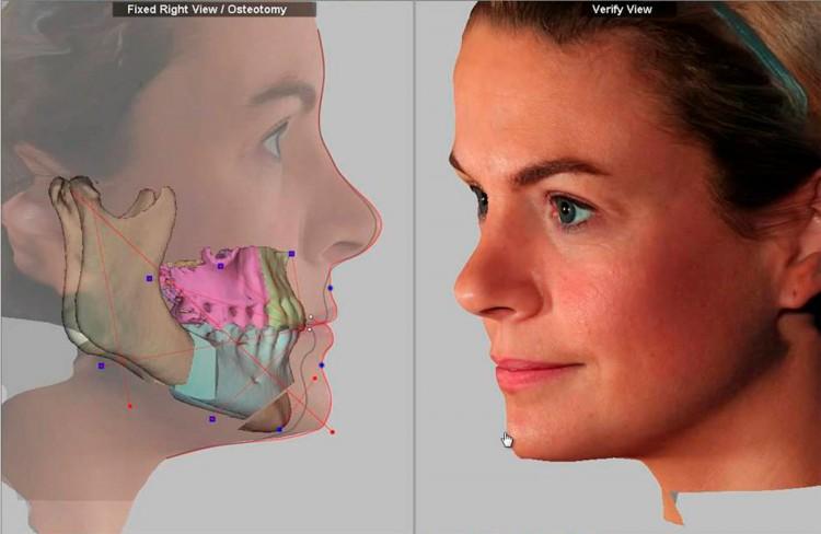 El Servicio de Imagen Diagnóstica (SID) incorpora un nuevo software