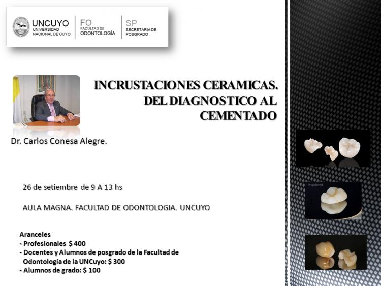 """Curso. """"Incrustaciones Cerámicas: del diagnóstico al cementado""""."""