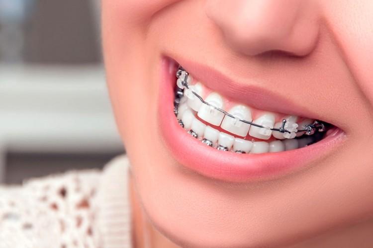 Servicio de Ortodoncia y Ortopedia Dentofacial