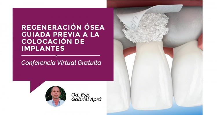 """Se acerca una Conferencia Virtual Gratuita sobre """"Regeneración Ósea"""""""